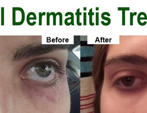 Perioral Dermatitis Treatment