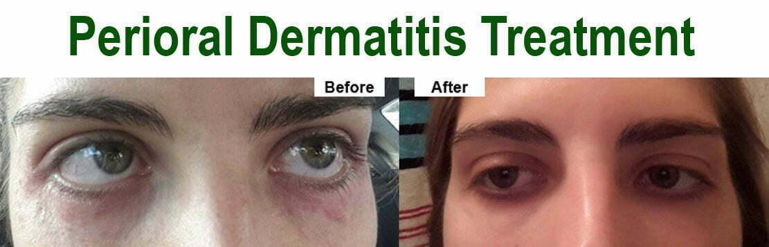 Perioral Dermatitis Treatment – Vibrant Health